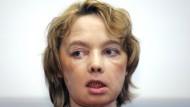 Isabelle Dinoir war 2005 der erste Mensch, der Teile eines fremden Gesichts transplantiert bekam. Hundebisse hatten große Teile davon entstellt.