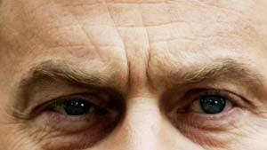Blair mit einem blauen Auge