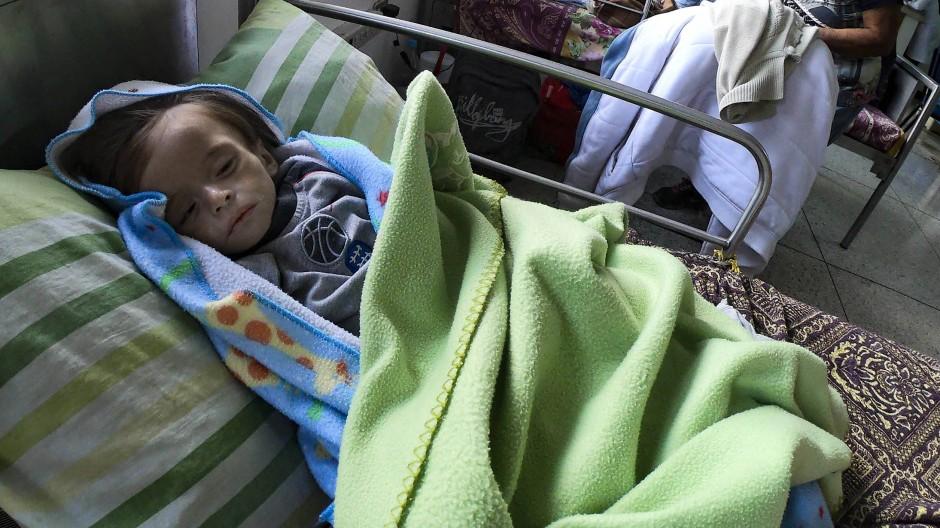 Unterernährtes Baby in einem Krankenhaus in Maracay