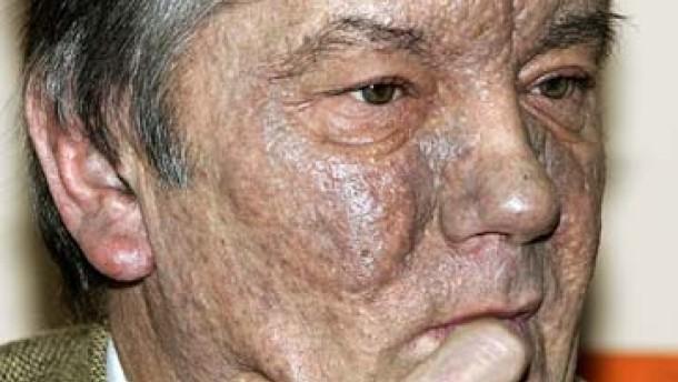 Das giftigste Dioxin in Juschtschenkos Blut