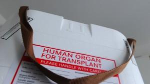 Weitere Manipulationen bei der Organvergabe