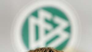 Klinsmann verteidigt Torhüter-Trennung