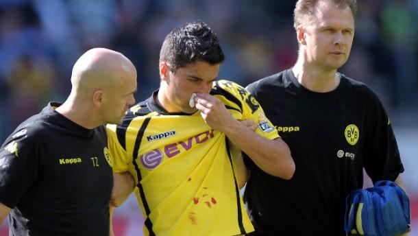 Dortmund holt sich eine blutige Nase
