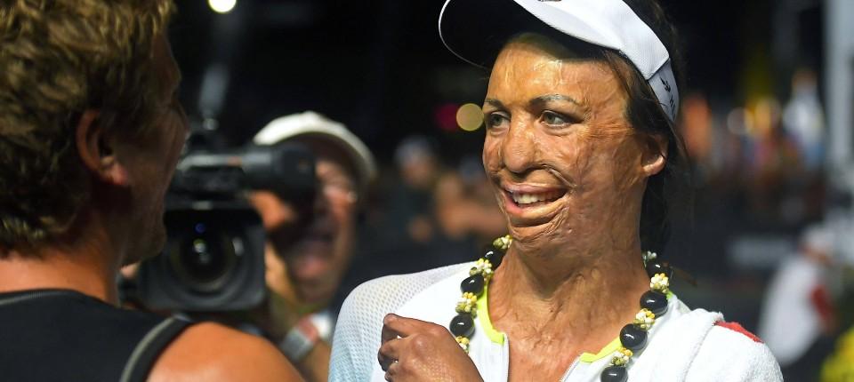 Turia Pitt Absolviert Ironman Hawaii 2016 Nach Koma Verbrennungen