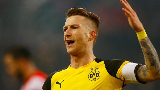 Nicht nur Reus macht den Dortmundern Sorgen
