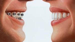 Unsichtbare Zahnspange für Erwachsene
