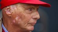 Die Folgen des schweren Unfalls vor 40 Jahren sieht man Niki Lauda bis heute an.