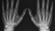 """NFC in der Hand: Zwei Implantate,in der Röntgenaufnahme der Hände jeweils zwischen Zeigefinger und Daumen von Aral Graafstra, dessen Unternehmen """"Dangerous Things"""" solche NFC-Produkte vertreibt."""