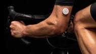 Der Sensor des amerikanischen Unternehmens Supersapiens misst den körpereigenen Blutzucker in Echtzeit.