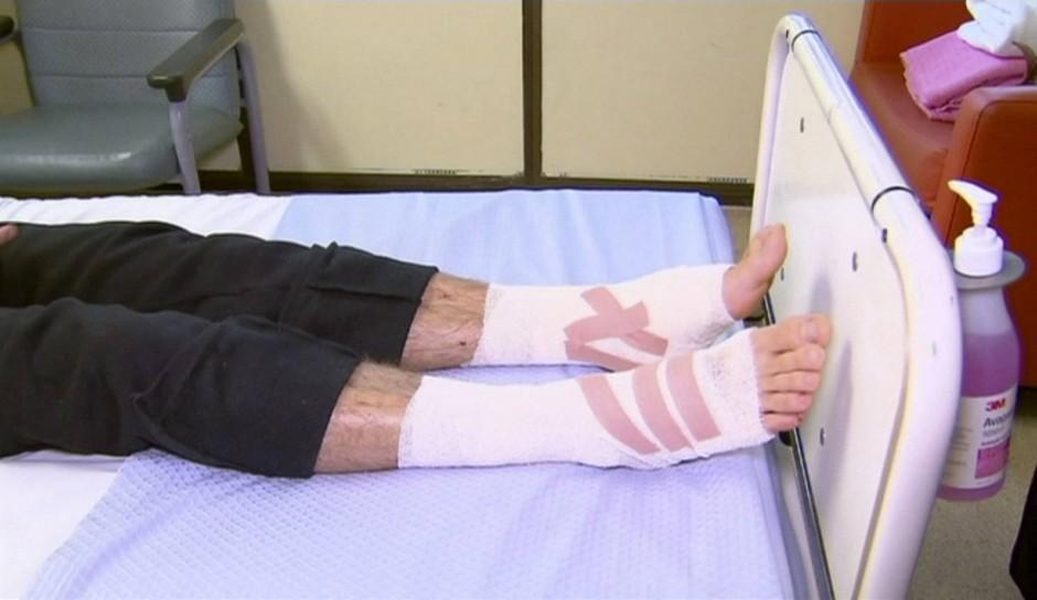 Kanizay hatte mit zahlreichen Bisswunden in Krankenhaus gebracht werden müssen.