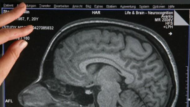 Das Gehirn entscheidet anders