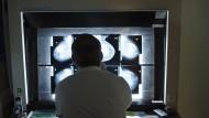 Wie eine Krebs-Datenbank Ärzte schlauer macht