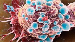 Wettlauf gegen den Krebs