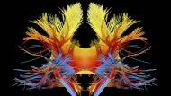 Visualisierte Gehirnströme