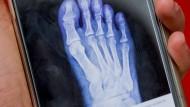 Die Röntgenaufnahme auf dem Handy.