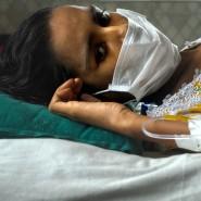 Aids bahnt vielen Leiden wie Tumoren und Nervendefekten den Weg: Indische Patientin mit TB.
