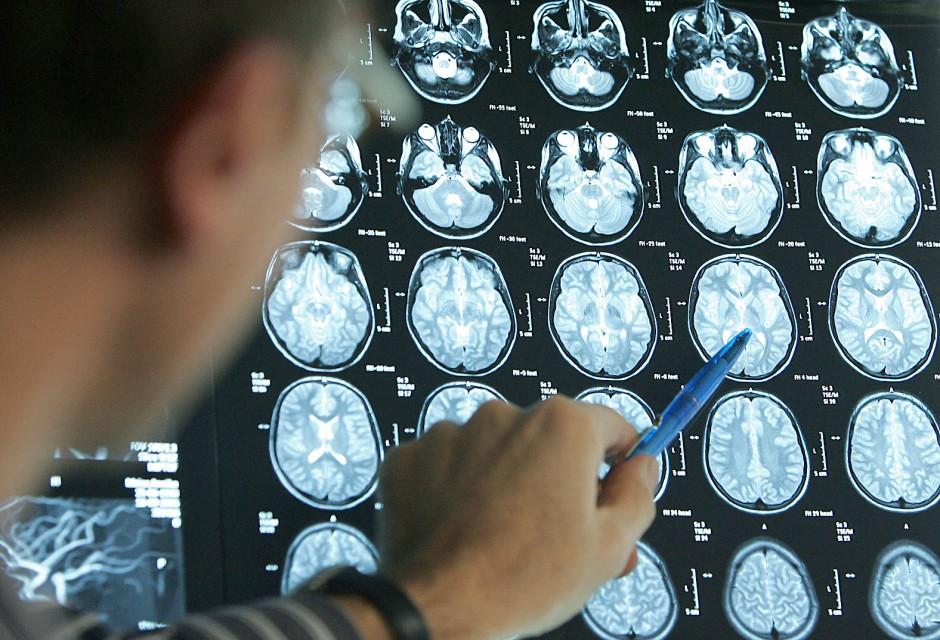 Anhand von MRT-Bildern eines Gehirns erkennt ein Arzt schnell das bei einem  Schlaganfall betroffene Hirnareal.
