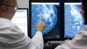 Sind Brustkrebspatientinnen bald von der Chemo erlöst?