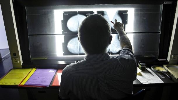 Erhöht eine Hormonbehandlung das Brustkrebsrisiko?