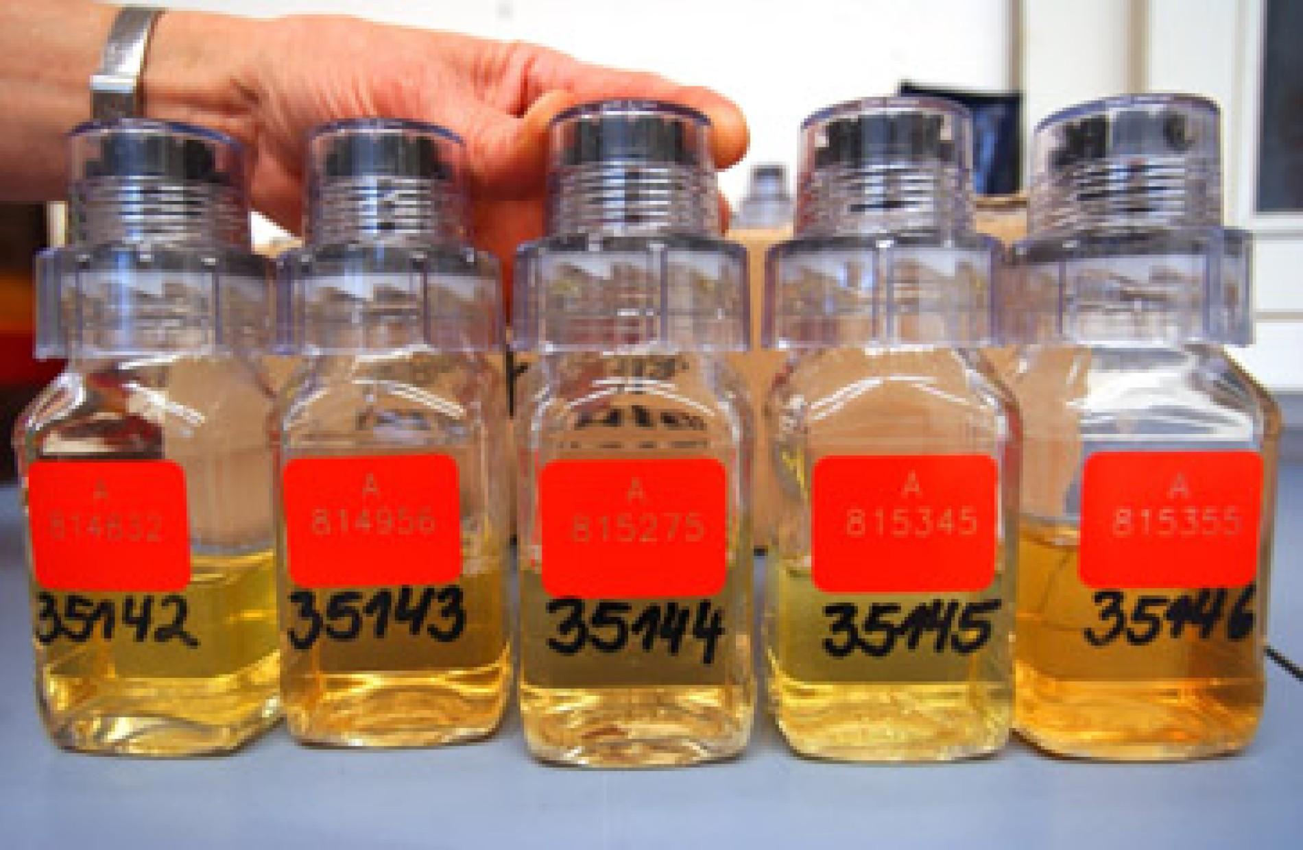 Zu viele rote blutkörperchen im urin