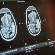 Hirnveränderungen durch die Corona-Infektion sind im Hirnscanner schwer zu erkennen.