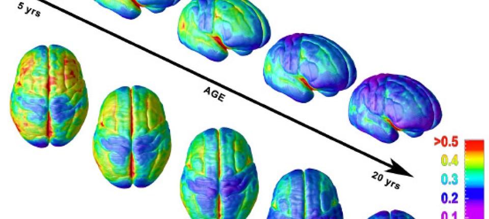 Hirnforschung: Denn sie wissen nicht, was ihr Kopf tut - Leben ...