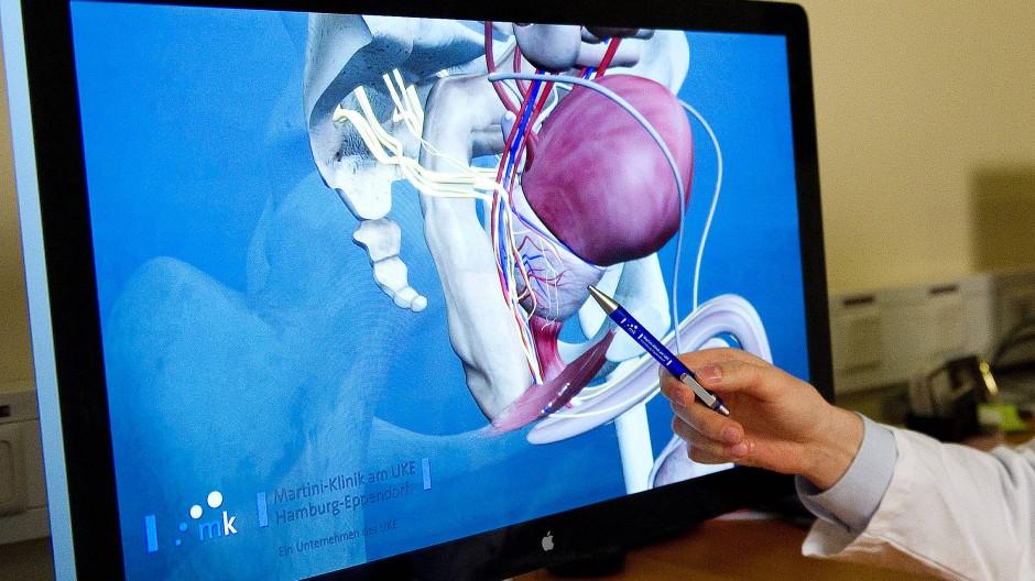 Das auf Bildgebung basierende Computermodell der Prostata.