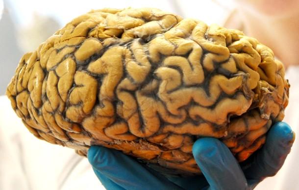 Bilderstrecke zu: Keine Spur vom Gender-Gehirn - Bild 3 von 3 - FAZ