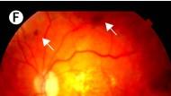 Die Zellen gegen Blindheit