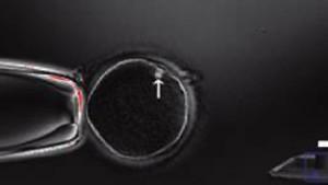 Gesetzesfrust um Embryonen und Gene