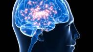Bei einem epileptischen Anfall  feuern zu viele Neuronen gleichzeitig  und reizen entweder einzelne Hirnregionen oder beide Gehirnhälften. Dieser  Impuls führt zum epileptischen Anfall.