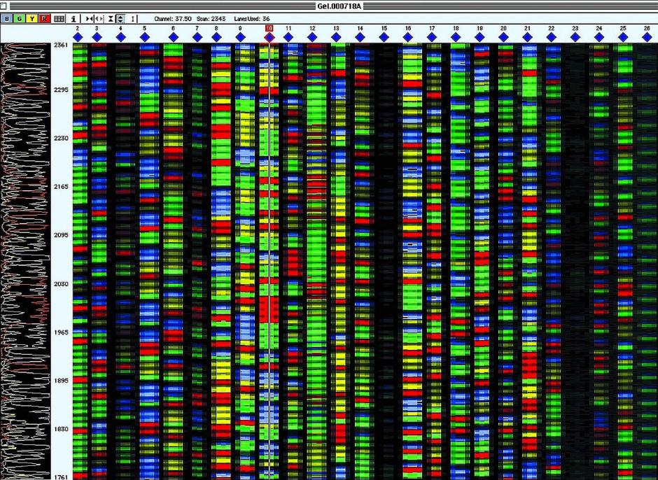 Ergebnis-Panel der Genomentzifferung.