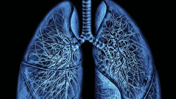 Wenn die Maschine das Atmen übernimmt