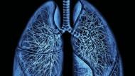 Die menschliche Lunge mit dem unteren Teil der Luftröhre und den Bronchien.