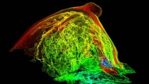 Wie Brustkrebszellen ihre DNA flicken