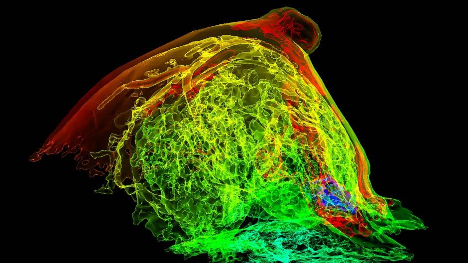 Versteckter Krebs: MRT-Aufnahme einer Brust mit Tumor (blau)