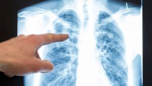 Das Röntgenbild vom eigenen Tod