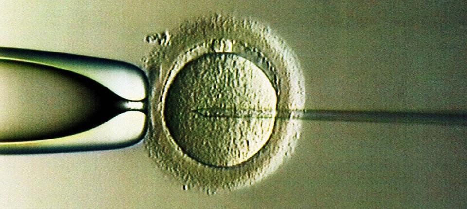 Mit der ICSI-Methode wird das Spermium in die entnommene Eizelle injiziert.
