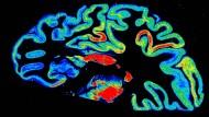 Bilderflut aus dem Gehirn. Mit digitalisierten Autoradiogrammen kann man einen dreidimensionalen Hirnatlas erzeugen, der verschiedene Hirnareale und deren Organisation zeigt.