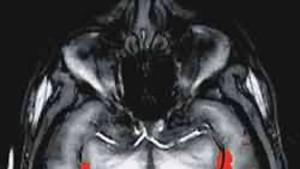 Die suggestiven Bilder der Hirnforschung