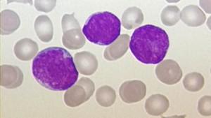 Maßgeschneiderte Therapie von Blutkrebs