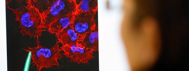 Monitorbild von Melanom-Zellen (schwarzer Hautkrebs)
