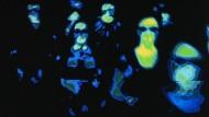 Grippe-Opfer im Wärmebild-Scanner, wie sie inzwischen an vielen Flughäfen zum Schutz bei Pandemie-Gefahr zur Verfügung stehen.