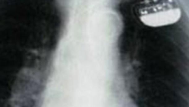 Implantierte Lebensretter in Verruf