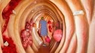 Anhand solcher begehbarer Darmmodelle wird das Innenleben des Verdauungstrakts erfahrbar. Die Darmwand zeigt verschiedene Krankheitsbilder wie Karzinom (bösartiger Tumor), Darmpolypen, Adenom (gutartiges Schleimhautgeschwulst) und Mobus Crohn (chronische Entzündung).