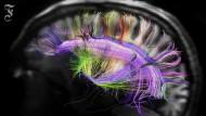 Nervenzell-Netze mit Hilfe von Hirnscans sichtbar gemacht.