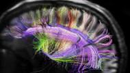 Nervenzell-Netze mit Hilfe von Hirnscans sichtbar gemacht: Durch die Beschädigung der Zellen kann die Funktion Gehirns eingeschränkt werden.