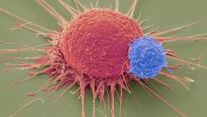 Mit Gentechnik gegen Blutkrebs