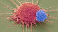 Eine T-Lymphozyte (blau) dockt an einer Krebszelle an. Der Krebs wird so vom körpereigenen Immunsystem bekämpft.