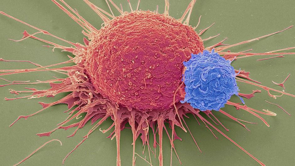 Eine T-Lymphozyte (blau) dockt an einer Krebszelle an